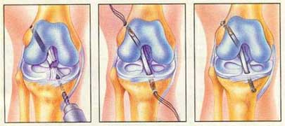 Reconstruction Arthroscopy